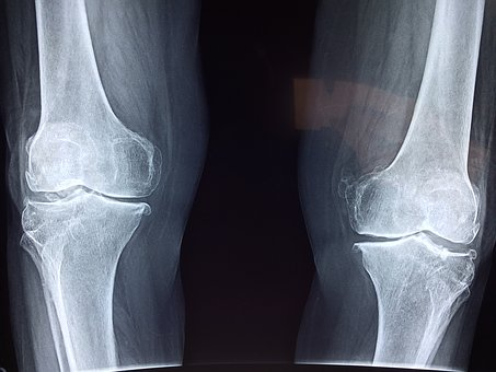 Endoproteza w stawie kolanowym